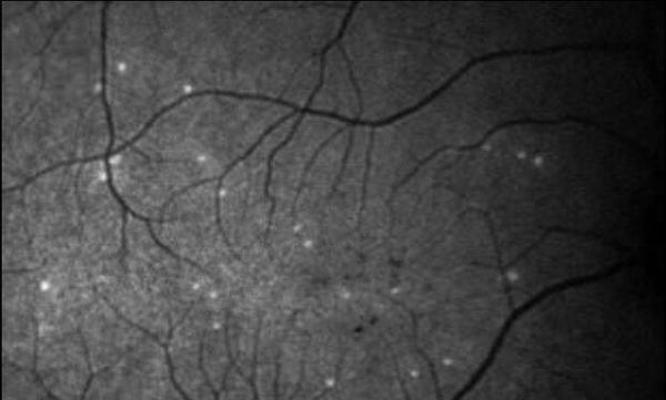 هوش مصنوعی بیماری چشمی را پیش بینی می نماید
